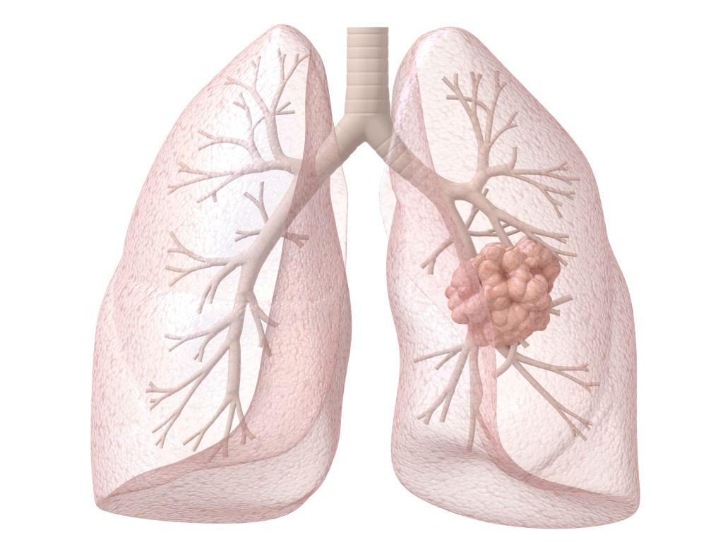 Рак женских органов признаки и симптомы 32