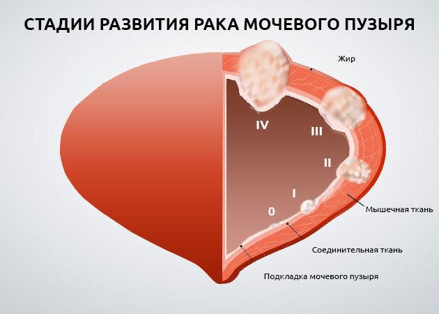 Opuhol-mochevogo-puzyrya