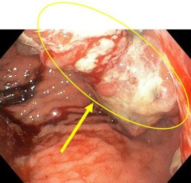 указана опухоль желудка стенозирующая просвет привратника