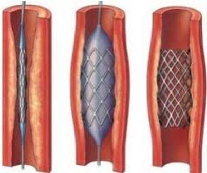 механизм установки стенка с область опухолевого стеноза