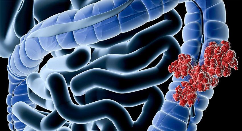 Аденокарцинома кишечника