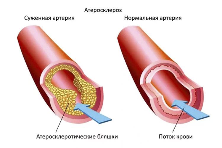 атеросклероз1