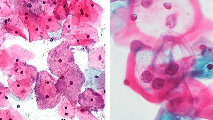 bacterial-vaginosi