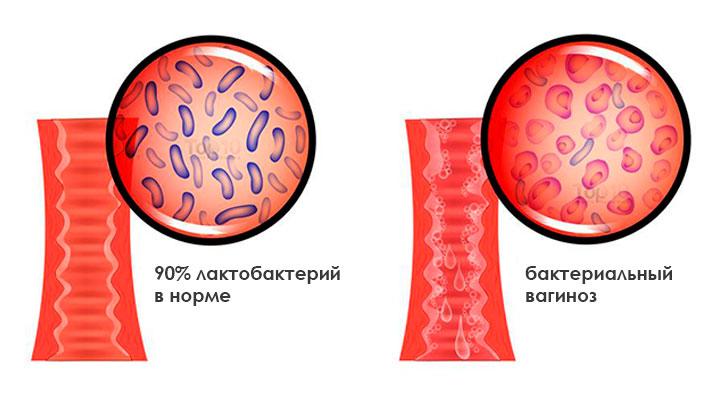 bacterial-vaginosis-diagram