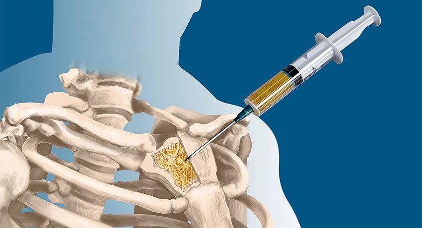 Биопсия кости