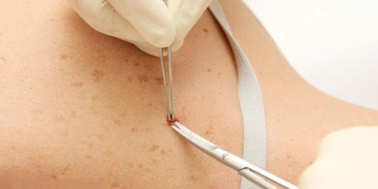 биопсия-кожи