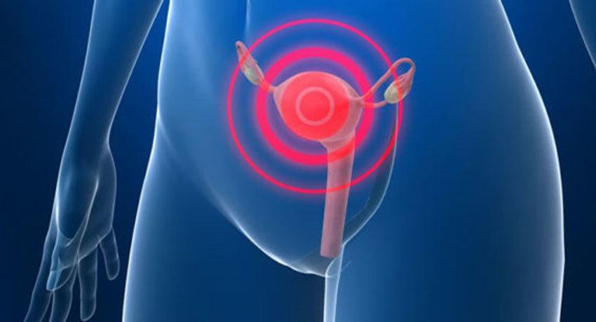 Симптомы рака матки