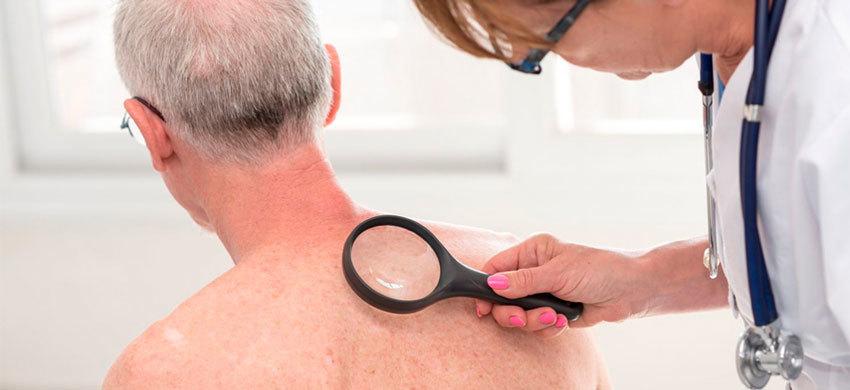 Лечение плоскоклеточного рака кожи