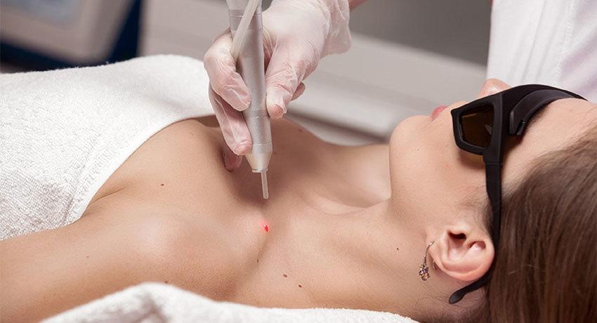 Удаление доброкачественного новообразования на коже