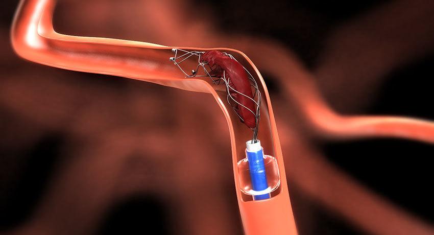 Эндоваскулярное лечение тромбоза