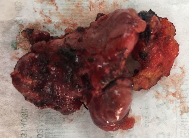Поражённая опухолью доля щитовидной железы