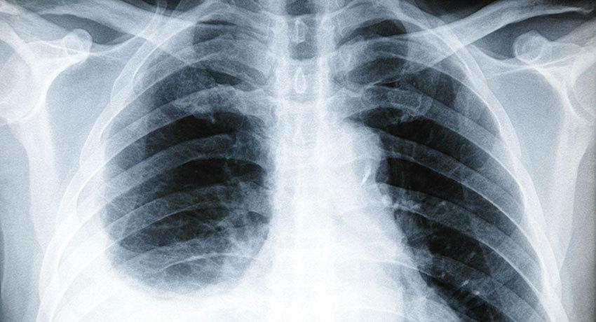 Жидкость в лёгких