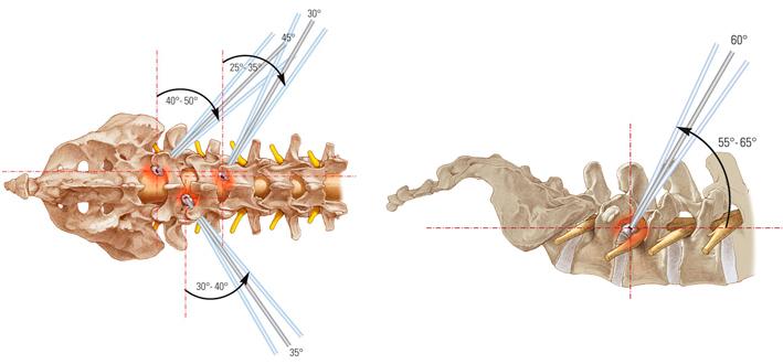 gryzha-endoskopiya