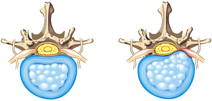 gryzha-pozvonochnika