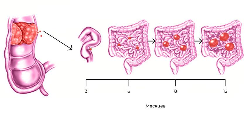 Развитие канцероматоза при колоректальном раке: из прямой кишки в брюшную полость