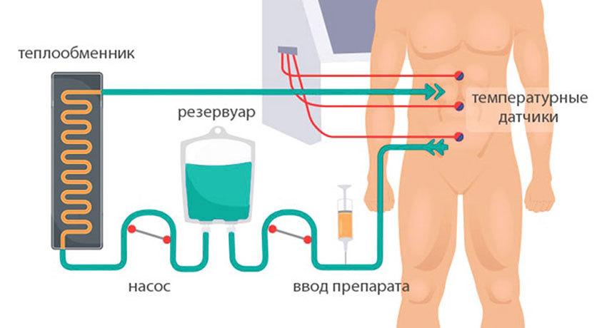 Схема проведения HIPEC