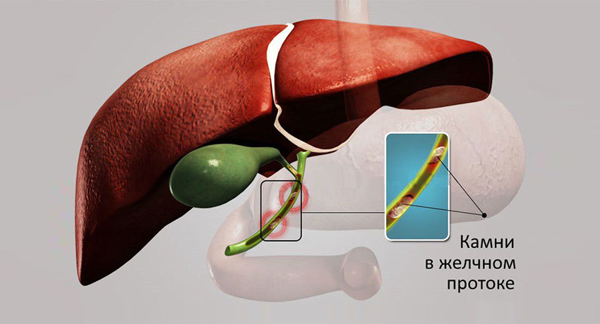 Лечение холедохолитиаза