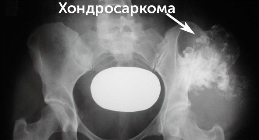 Хондросаркома на рентгеновском снимке