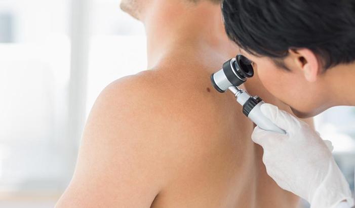 immunoterapiya-melanoma
