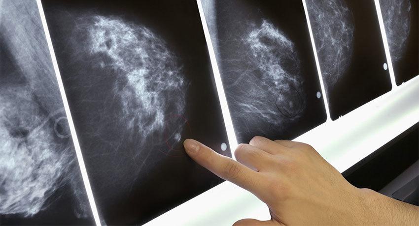 Лечение карциномы молочной железы
