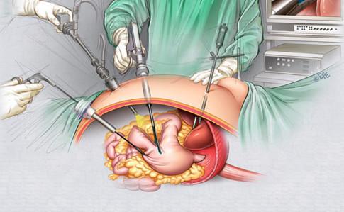 laparoskopicheskaya-gastrektomiya