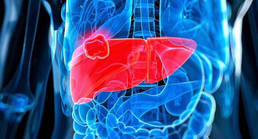 Гепатоцеллюлярный рак печени