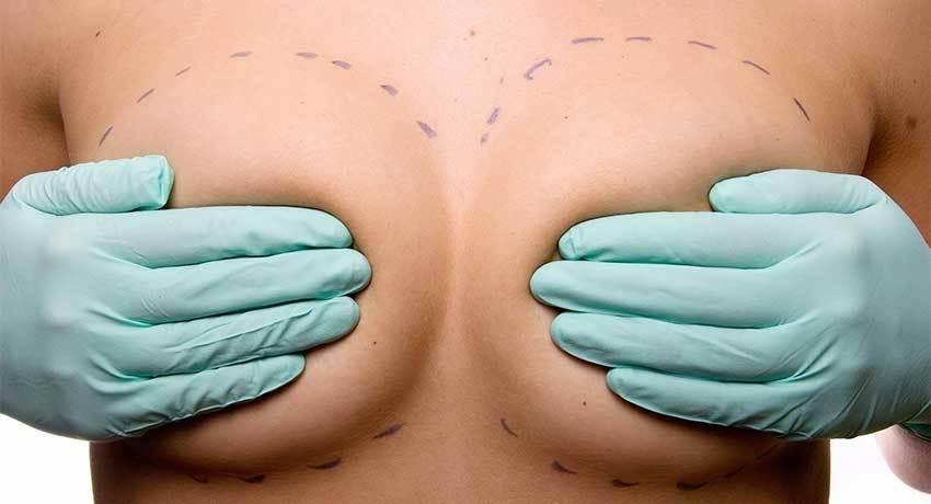 Мастэктомия с реконструкцией груди