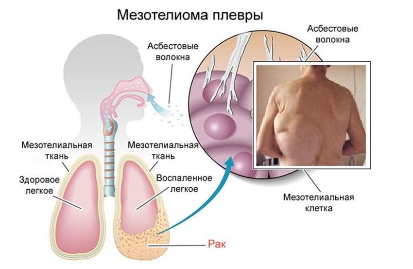 Мезотелиома плевры