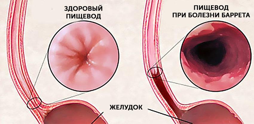 Оперативное лечение рефлюкс-эзофагита