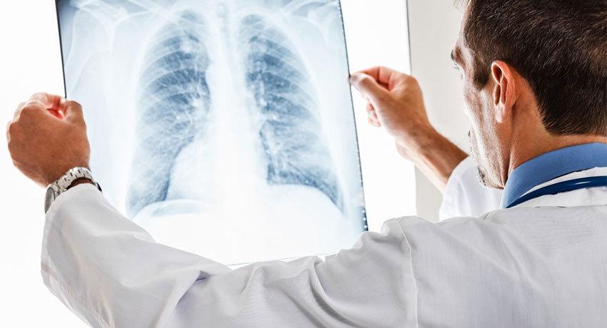 Пневмоэктомия при раке легких