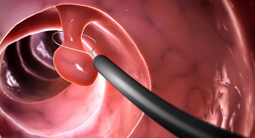 Проведение полипэктомии