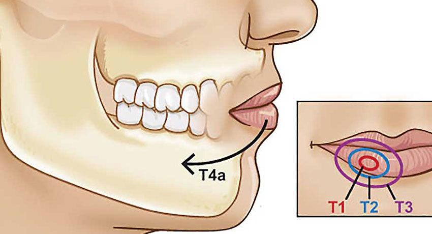 Рак губы с метастазами
