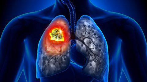 rak-lyogkih