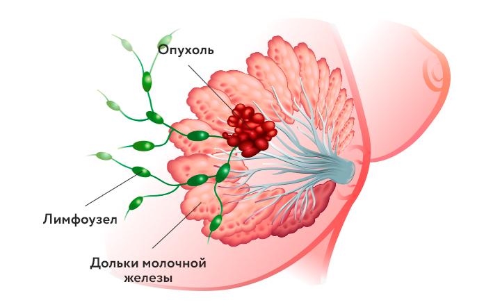 rak-pedzheta