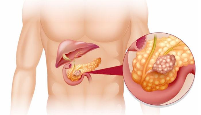 rak-podzheludochnoj-metastazy1
