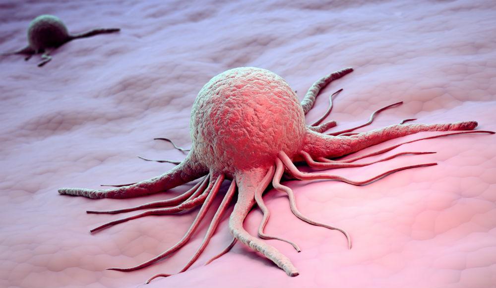 Передается ли рак мочевого пузыря по нас thumbnail