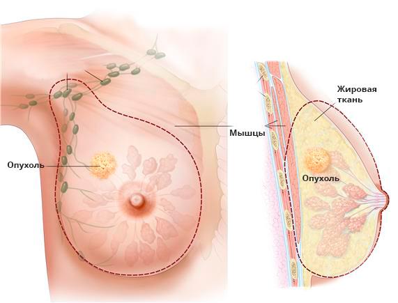shema-mastektomiya