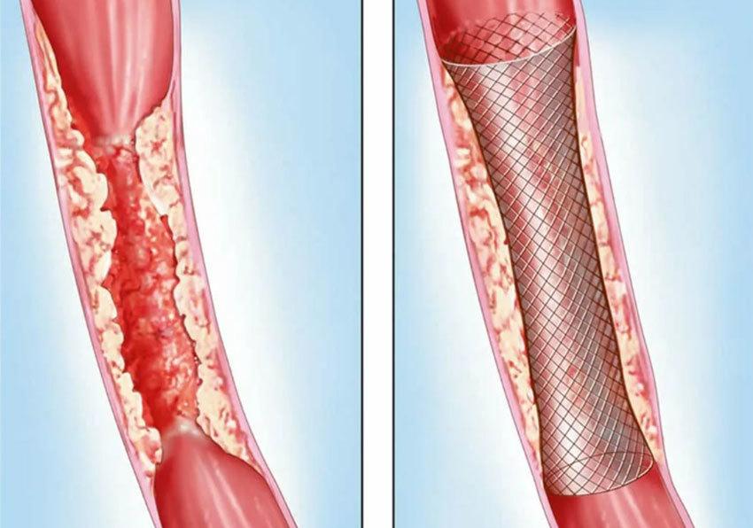 Стентирование кишечника