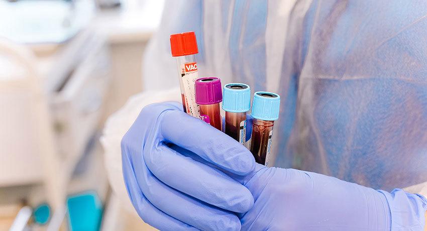 Молекулярно-генетические исследования для подбора таргетной терапии