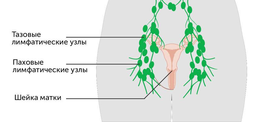 Лимфатические узлы таза и паховой области