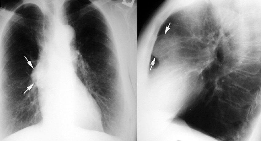 Тимома при рентгенографии