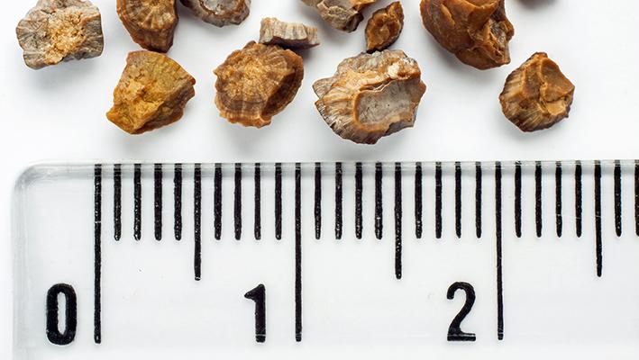 Камни в почках: фото