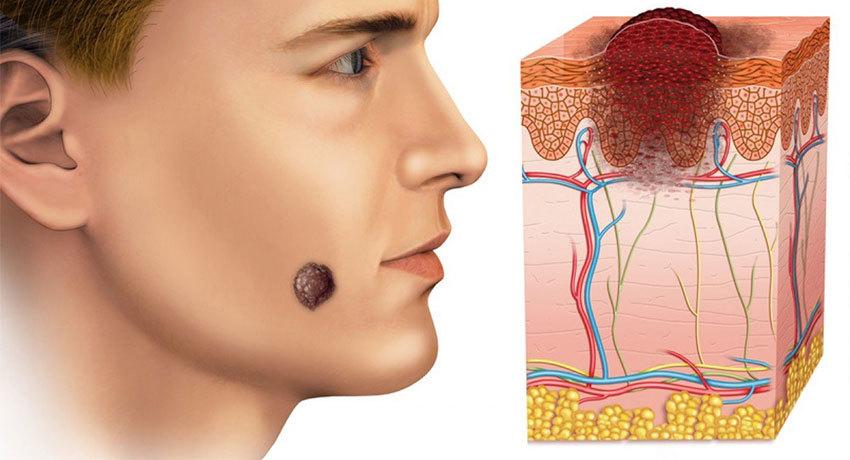 Злокачественные опухоли кожи